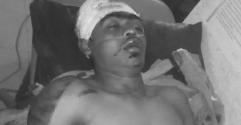 রামগতি: মোটর সাইকেল-সিএনজি সংঘর্ষে আহত একজনের মৃত্যু