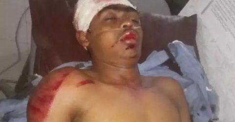 রামগতি: স্বাস্থ্য কমপ্লেক্সের সামনে মোটর সাইকেল-সিএনজি সংঘর্ষ: আহত ৪